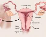 OSPAÑA y la concientización sobre el cáncer de ovario