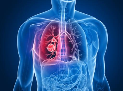 OSPAÑA y el tratamiento de la neumonía, una enfermedad respiratoria