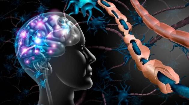 OSPAÑA y el diagnóstico de la Esclerosis Múltiple