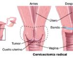 OSPAÑA y la prevención del cáncer de cuello uterino