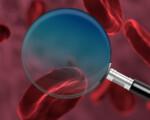 OSPAÑA y el tratamiento de la hemofilia, un trastorno en la coagulación de la sangre