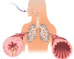 OSPAÑA y el tratamiento del asma